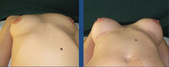 implant mamar inainte si dupa - dr. Toma Mugea