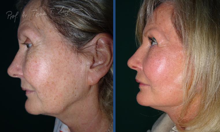 Lifting Facial si Adipoimplant